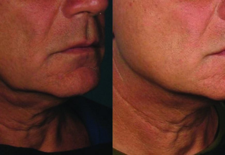 Thermage: Things to Know About This Laser Skin Firm Treatment